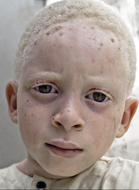 On évalue ainsi, en Tanzanie à 1000 dollars une main d'albinos, un corps entièrement démembré pouvant rapporter 75.000 dollars (Photo: Pinterest)